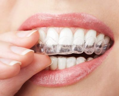 Invisalign St. Charles, IL